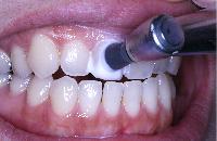 歯科衛生士によるプロフェッショナルケア