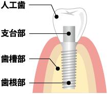 インプラント イメージ図