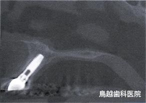 インプラント術後の確認 イメージ画像