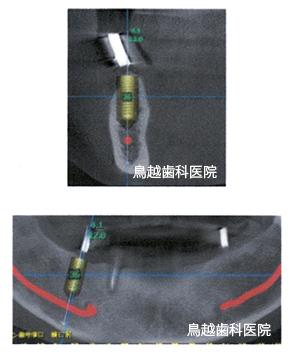 インプラント術前の診断 イメージ画像