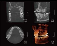 歯科用CT(3D)装置 イメージ画像