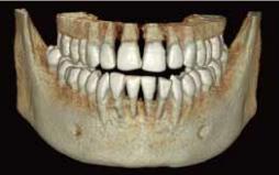 CTで診断する目的 イメージ画像