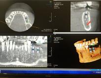 CTモードイメージ画像