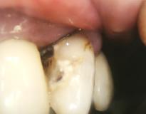 虫歯イメージ画像