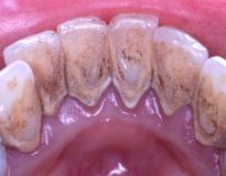 歯石イメージ画像
